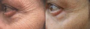 Red Light Therapy For Wrinkles and Fine Lines - Before and After